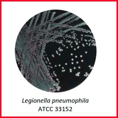 1020   PLACA LEGIONELLA GVPC AGAR - MYC DIAGNOSTICA